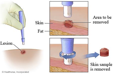 mri guided breast biopsy results