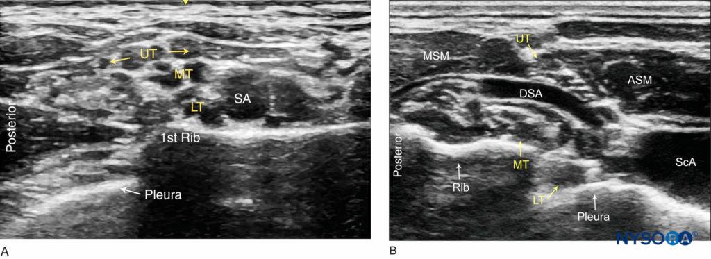 nysora ultrasound guided interscalene block